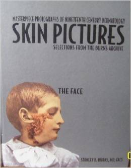 Skin Pictures: Masterpiece Photographs Of Nineteenth Century Dermatology: Selections From The Burns Archive