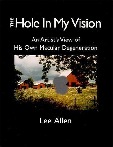 Descarga de pdf de libro real The Hole in My Vision: Watching My Own Age-Related Macular Degeneration