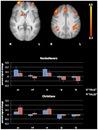 The Neural Correlates of Religious and Nonreligious Belief