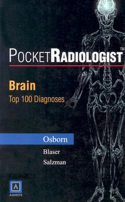 Pocketradiologist - Brain: Top 100 Diagnoses