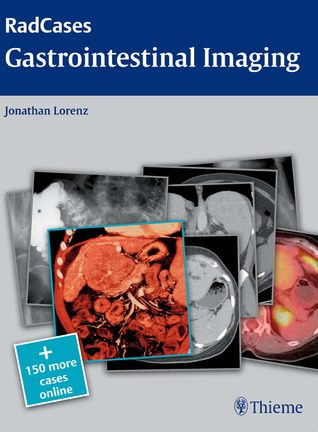 Radcases Gastrointestinal Imaging
