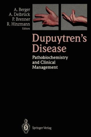 Dupuytren's Disease: Pathobiochemistry And Clinical Management
