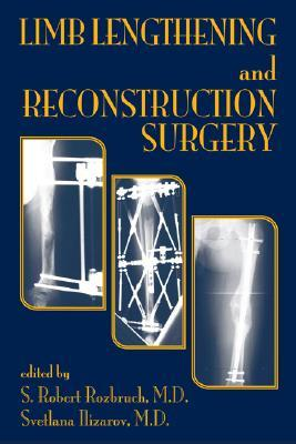 Limb Lengthening and Reconstruction Surg...