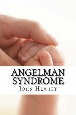 Angelman Syndrome: Causes, Tests and Treatments