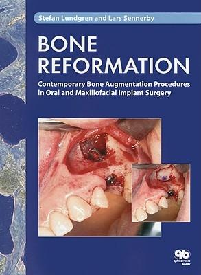 Bone Reformation: Contemporary Bone Augmentation Procedures in Oral and Maxillofacial Implant Surgery