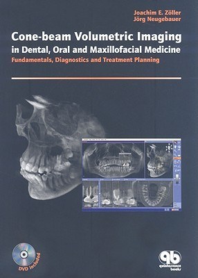 Cone-Beam Volumetric Imaging in Dental, Oral and Maxillofacial Medicine: Fundamentals, Diagnostics and Treatment Planning [With DVD]