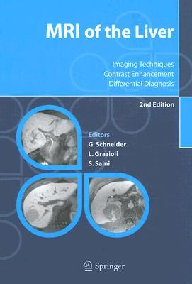 mri-of-the-liver-imaging-techniques-contrast-enhancement-differential-diagnosis