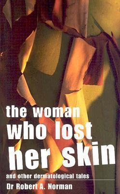The Woman Who Lost Her Skin