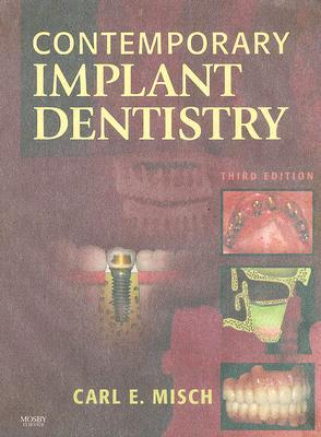Contemporary implant dentistry by carl e misch 2247156 fandeluxe Choice Image