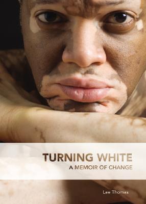Turning White by Lee Thomas