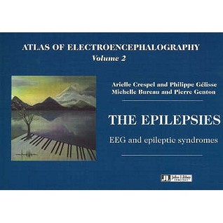 Atlas Of Electroencephalography Vol 2. The Epilepsies. Eeg And Epileptic Syndromes