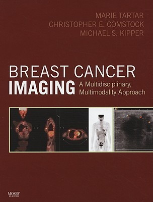 Breast Cancer Imaging: A Multidisciplinary, Multimodality Approach