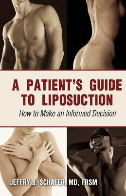 A Patient's Guide to Liposuction by Jeffry B. Schafer