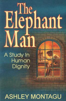 the-elephant-man-a-study-in-human-dignity