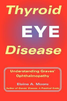 Descargar libros en Internet gratis Thyroid Eye Disease: Understanding Graves' Ophthalmopathy