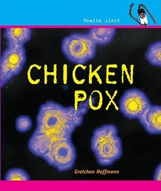 Chickenpox