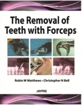 Removal of Teeth with Forceps