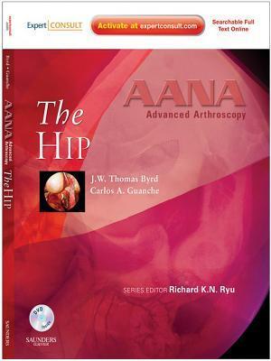 Aana Advanced Arthroscopy: The Hip E-Book