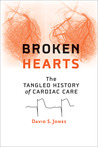 Fixing Hearts, Damaging Brains: The Tangled History of Cardiac Care