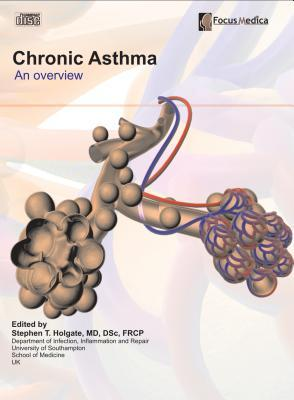 chronic asthma Asthma (az-ma) is a chronic (long-term) lung disease that inflames and narrows the airways asthma causes recurring periods of wheezing (a whistling sound when you breathe), chest tightness, shortness of breath, and coughing the coughing often occurs at night or early in the morning.
