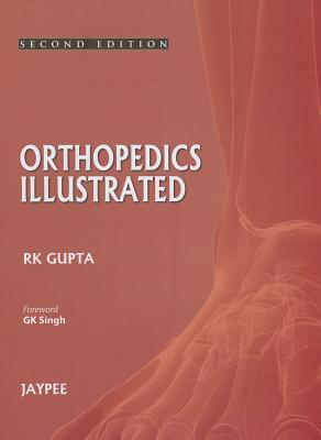 Orthopedics Illustrated