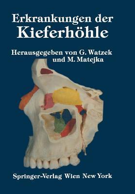 Erkrankungen Der Kieferhohle: Symposium, Fuschl, 26. 29. September 1985