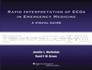 Rapid Interpretation of ECGs in Emergency Medicine