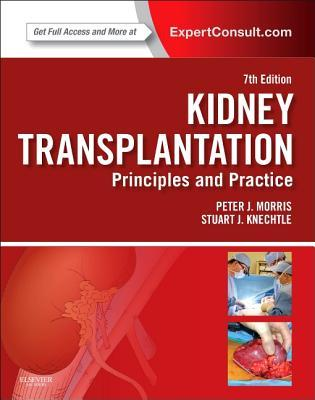 Kidney Transplantation with Access Code: Principles and Practice