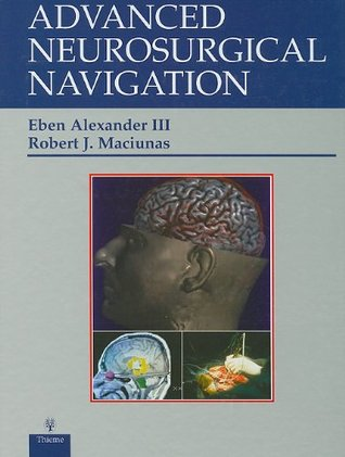 Advanced Neurosurgical Navigation