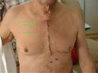 Patient's View of Open Chest Surgery