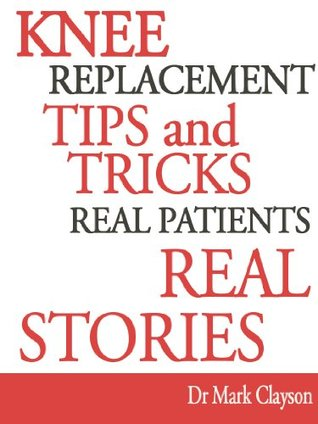 Knee Replacement Tips and Tricks (Knee Replacement Support series)