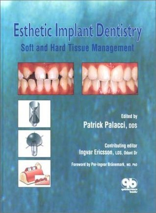 Esthetic Implant Dentistry: Soft and Hard Tissue Management