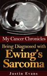 My Cancer Chronicles: Being Diagnosed with Ewing's Sarcoma
