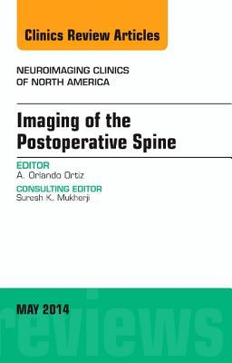 Imaging of the Postoperative Spine, an Issue of Neuroimaging Clinics