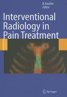 Interventional Radiology in Pain Treatment