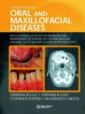 Oral and Maxillofacial Diseases: An Illustrated Guide to the Diagnosis and Management of Diseases of the Oral Mucosa, Gingivae, Teeth, Salivary Glands, Bones and Joints