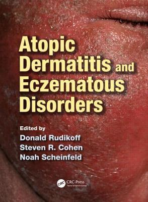 atopic-dermatitis-and-eczematous-disorders