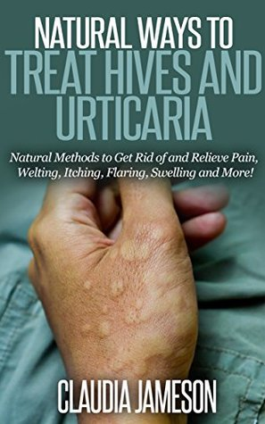Natural Ways to Treat Hives and Urticaria: Natural Methods to Get Rid of and Relieve Pain, Welting, Itching, Flaring, Swelling and More!