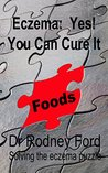 Eczema: Yes! You Can Cure It: Foods - the missing piece. 10 steps to solve the eczema puzzle.