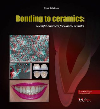 Bonding to Ceramics: Scientific Evidences for Clinical Dentistry