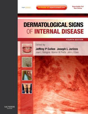 Dermatological Signs of Internal Disease E-Book: Expert Consult - Online and Print