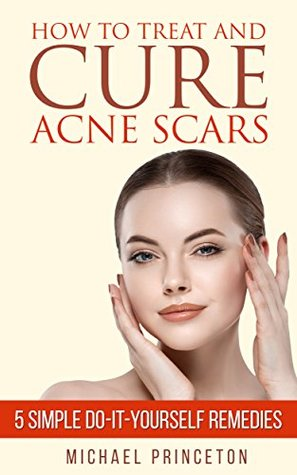 How to Treat and Cure Acne Scars: 5 Simple Do-it-yourself Remedies