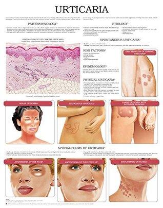 Urticaria e chart: Full illustrated