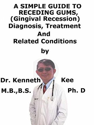A Simple Guide To Receding Gums, (Gingival Recession) Diagnosis, Treatment And Related Conditions