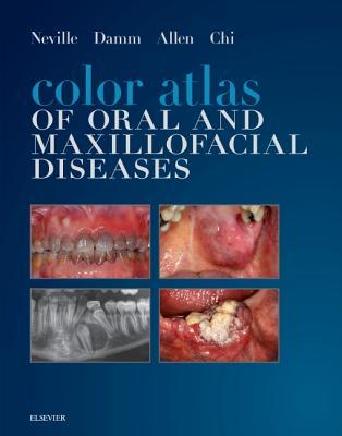 Color Atlas of Oral and Maxillofacial Diseases - E-Book