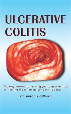 Ulceratlve Colltls: A Way Forward to Reviving Your Digestive Tract by Treating the Inflammatory Bowel Disease
