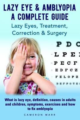 Lazy Eye & Amblyopia - A Complete Guide: Lazy Eyes, Treatment, Correction & Surgery. What Is Lazy Eye, Definition, Causes in Adults and Children, Symptoms, Exercises and How to Fix Amblyopia.