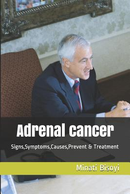Adrenal cancer: Signs, Symptoms, Causes, Prevent & Treatment